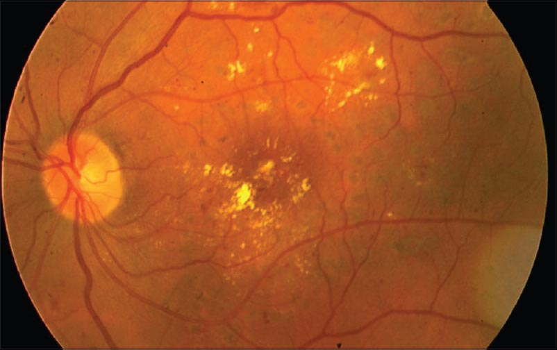 current trends in the treatment of diabetic macular edema