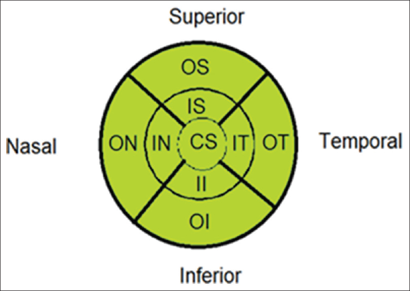 Figure 1: Macular sectors. CS: Central subfield, IS: Inner superior, IN: Inner nasal, II: Inner inferior, IT: Inner temporal, OS: Outer superior, ON: Outer nasal, OI: Outer inferior, OT: Outer temporal.