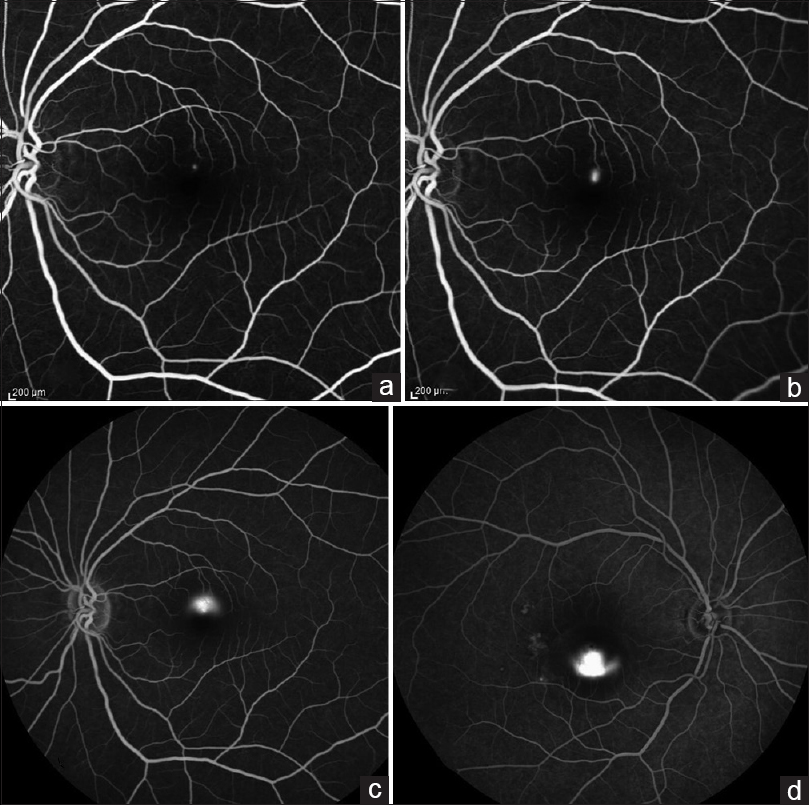 Figure 1: Fundus angiography of the left eye of a 46-year-old male patient with typical inkblot (a) leakage 30 s after fluorescein injection and smoke stack pattern (b) 6 min later. Typical mushroom or umbrella pattern (c) in later stages. (d) Inverted smoke stack pattern in a 40-year-old male patient