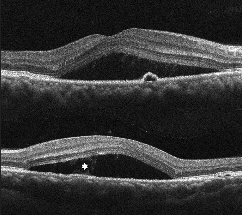 Figure 3: Spectral-domain optical coherence tomography showing serous retinal detachment with subretinal fluid and pigment epithelial detachment. Source of leakage (*) seen within the subretinal fluid