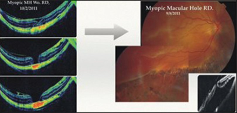 Figure 4: It is widely agreed now that myopic foveoschisis is the initial stage of the process which can progress to foveal detachment, lamellar hole or full thickness myopic macular hole all of which are placed under the term myopic traction maculopathy
