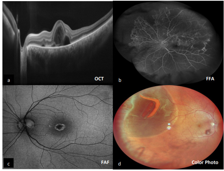 Figure 1: (a) Optical coherence tomography image. (b) Montage of fundus fluorescein angiography image. (c) Retro-mode image. (d) Color photograph
